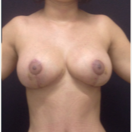 35-44 year old woman treated with Breast Reduction after 2506660