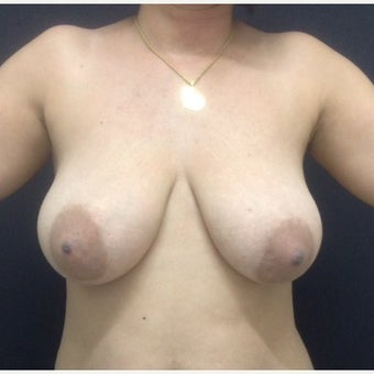 35-44 year old woman treated with Breast Reduction before 2506660