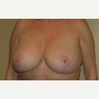45-54 year old woman treated with Breast Lift after 3799040