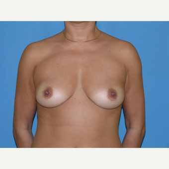 Breast Implants before 3806989