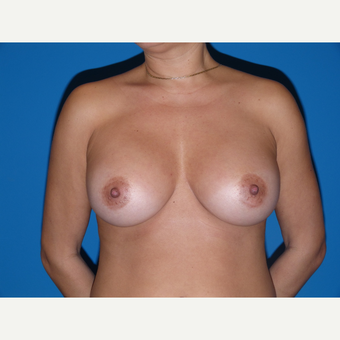 Breast Implants after 3806989