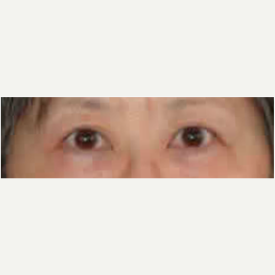 Eyelid Surgery after 3058015