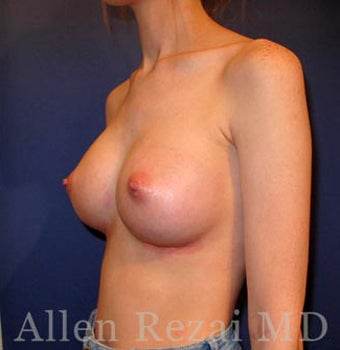 Bilateral Breast Augmentation  -  Pre- & 4 weeks  Post-op 3473968