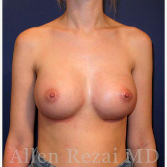 Bilateral Breast Augmentation  -  Pre- & 4 weeks  Post-op after 3473968