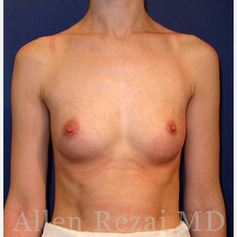 Bilateral Breast Augmentation  -  Pre- & 4 weeks  Post-op before 3473968