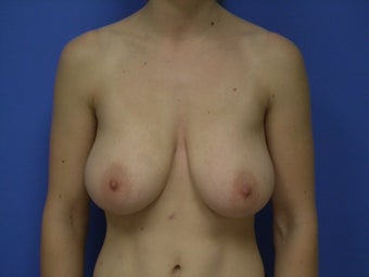 36 yo female breast reduction before 866994