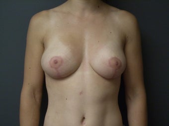36 yo female breast reduction after 866994