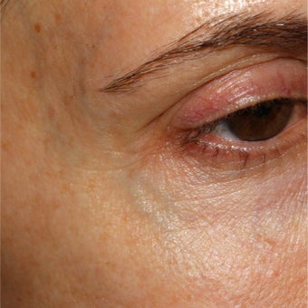 51year old woman treated with Cool Touch Varia laser for blue veins around temples and eyes.
