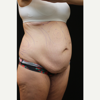30 year old woman treated with Tummy Tuck before 3089266