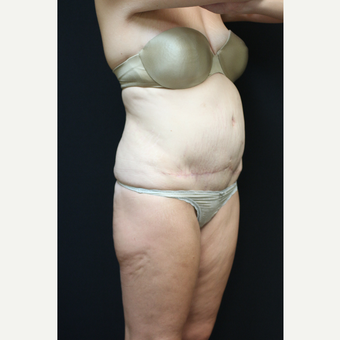 30 year old woman treated with Tummy Tuck after 3089266