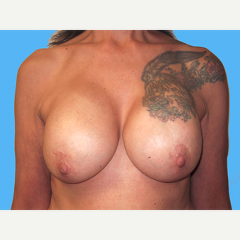 Breast Implant Removal before 3809780