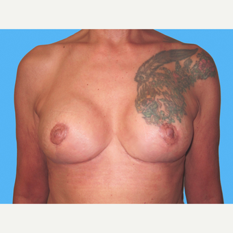 Breast Implant Removal after 3809780