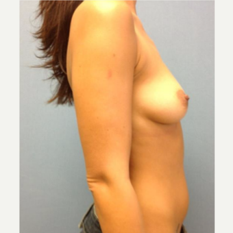 35-44 year old woman treated with Breast Augmentation before 3742809