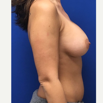 35-44 year old woman treated with Breast Augmentation after 3742809