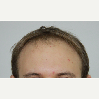 FUE Hair Transplant result  3,500 grafts before 3616827