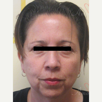 45-54 year old woman treated with Restylane before 3729099
