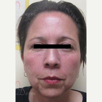 45-54 year old woman treated with Restylane after 3729099