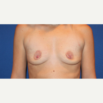 25-34 year old woman treated with Breast Lift with Implants before 3289148