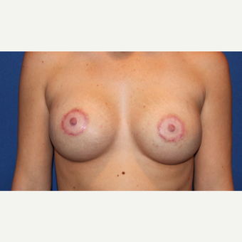 25-34 year old woman treated with Breast Lift with Implants after 3289148
