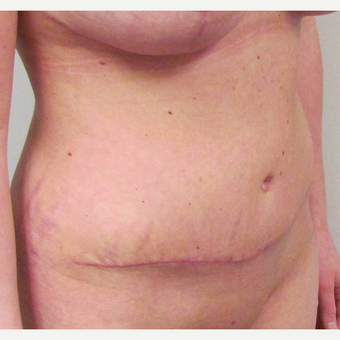 Tummy Tuck for this 31 Year Old Woman after 3092490