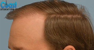 35-44 year old man treated with Hair Transplant after 3032900