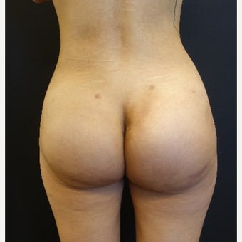 25-34 year old woman treated with Butt Implants with Fat Transfer after 2664010