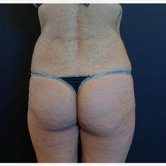 25-34 year old woman treated with Butt Implants with Fat Transfer before 2664010