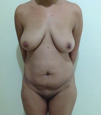 27 years old female treated for back and abdomen lipodistrophy and breast ptosis before 1316766