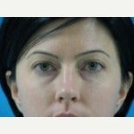35-44 year old woman treated with Brow Lift before 2241058