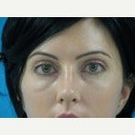 35-44 year old woman treated with Brow Lift after 2241058