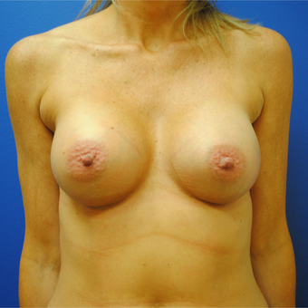 35-44 year old woman treated with Breast Augmentation after 3299808