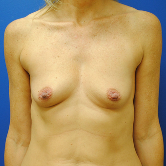 35-44 year old woman treated with Breast Augmentation before 3299808