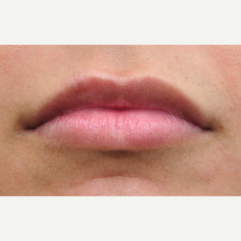 Balance is key with lip treatments after 3140393