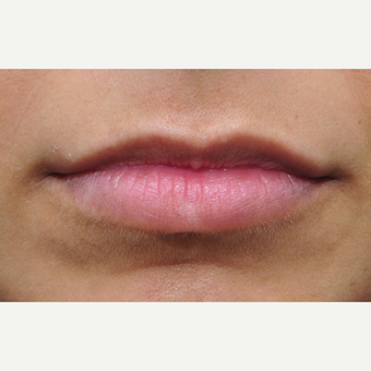 Balance is key with lip treatments before 3140393