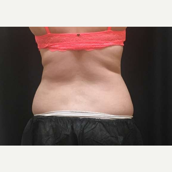 18-24 year old woman treated with CoolSculpting after 3747847