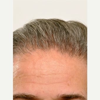 55 year old man treated with Hair Transplant after 3615610