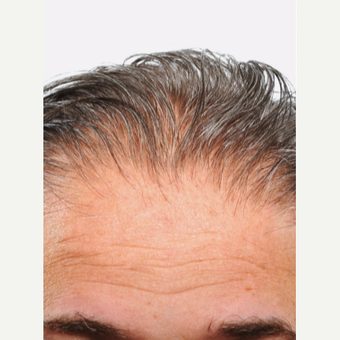 55 year old man treated with Hair Transplant before 3615610
