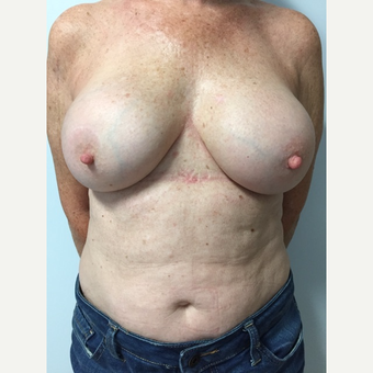 58 year old woman treated with Breast Implant Revision after 3585969