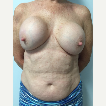 58 year old woman treated with Breast Implant Revision before 3585969