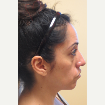 35-44 year old woman treated with Liquid Facelift (Botox, Restylane & Voluma) before 3197814