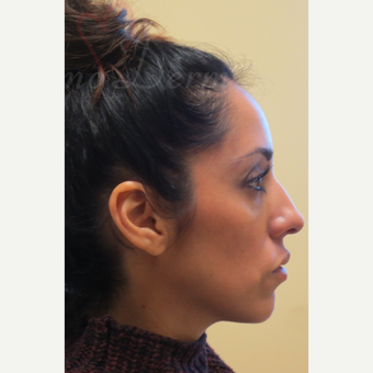 35-44 year old woman treated with Liquid Facelift (Botox, Restylane & Voluma) after 3197814