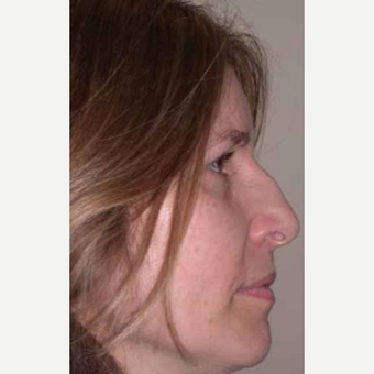 35-44 year old woman treated with Rhinoplasty before 3521251