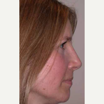 35-44 year old woman treated with Rhinoplasty after 3521251