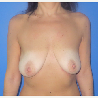 35-44 year old man treated with Breast Lift with Implants before 2919521