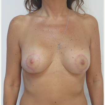 35-44 year old man treated with Breast Lift with Implants after 2919521