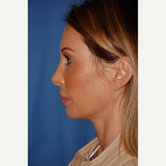 35-44 year old woman treated with Revision Rhinoplasty before 3288669