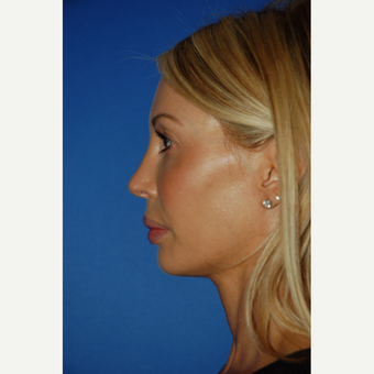 35-44 year old woman treated with Revision Rhinoplasty after 3288669