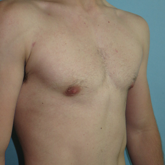 25-34 year old man treated with Male Breast Reduction after 3397225