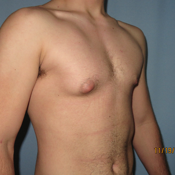 25-34 year old man treated with Male Breast Reduction before 3397225