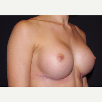 18-24 year old woman treated with Breast Implants after 3440885